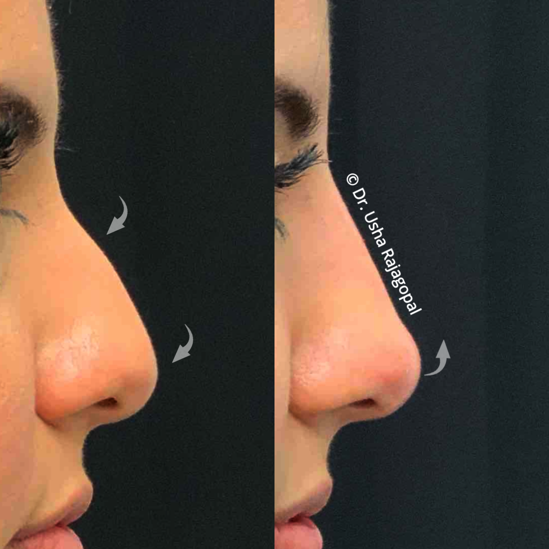 non-surgical-rhinoplasty-ba-71_ig.png