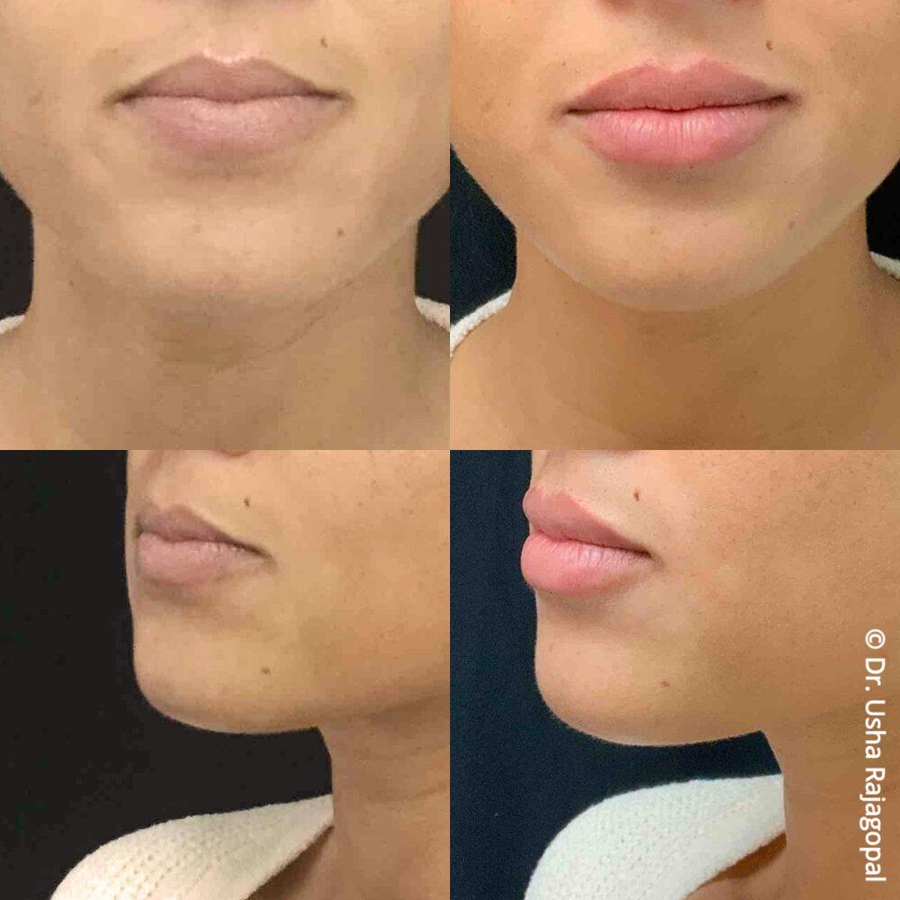 lip_augmentation_ang_ba_1.jpg