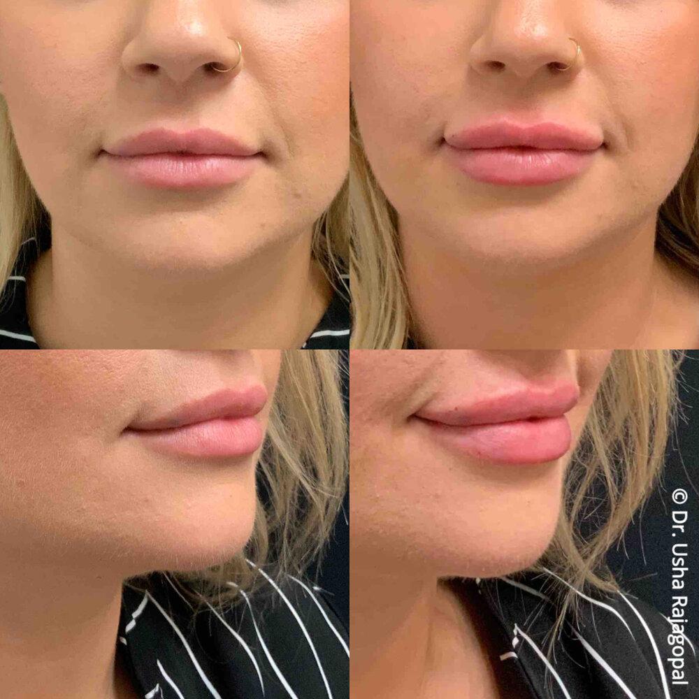 lip_augmentation_ang_ba_2.jpg