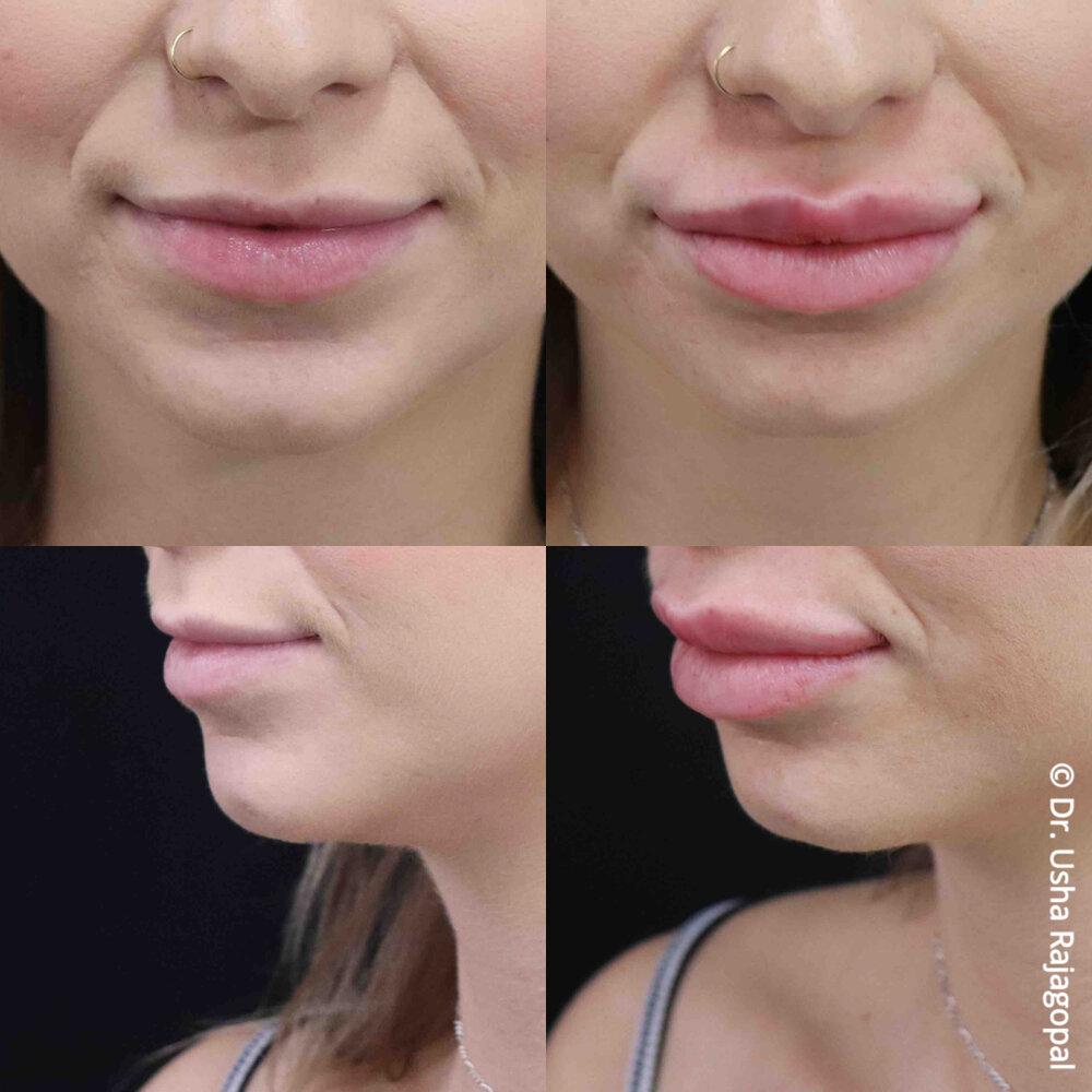 lip_augmentation_ang_ba_3.jpg