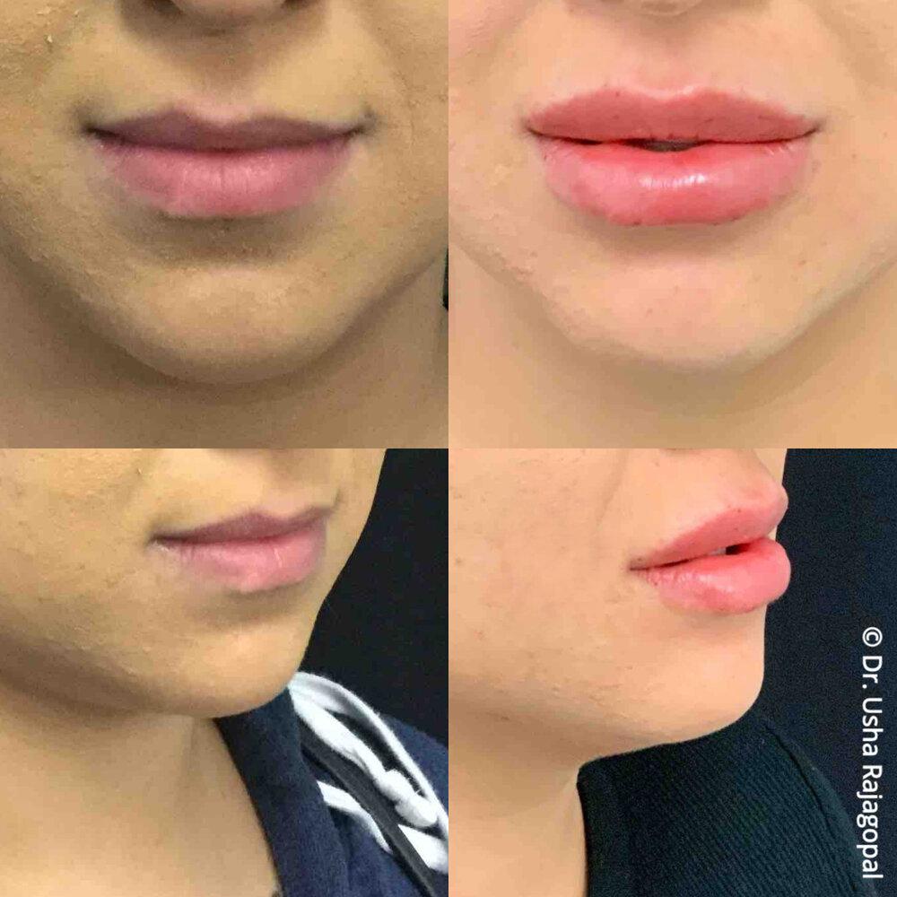 lip_augmentation_ang_ba_4.jpg