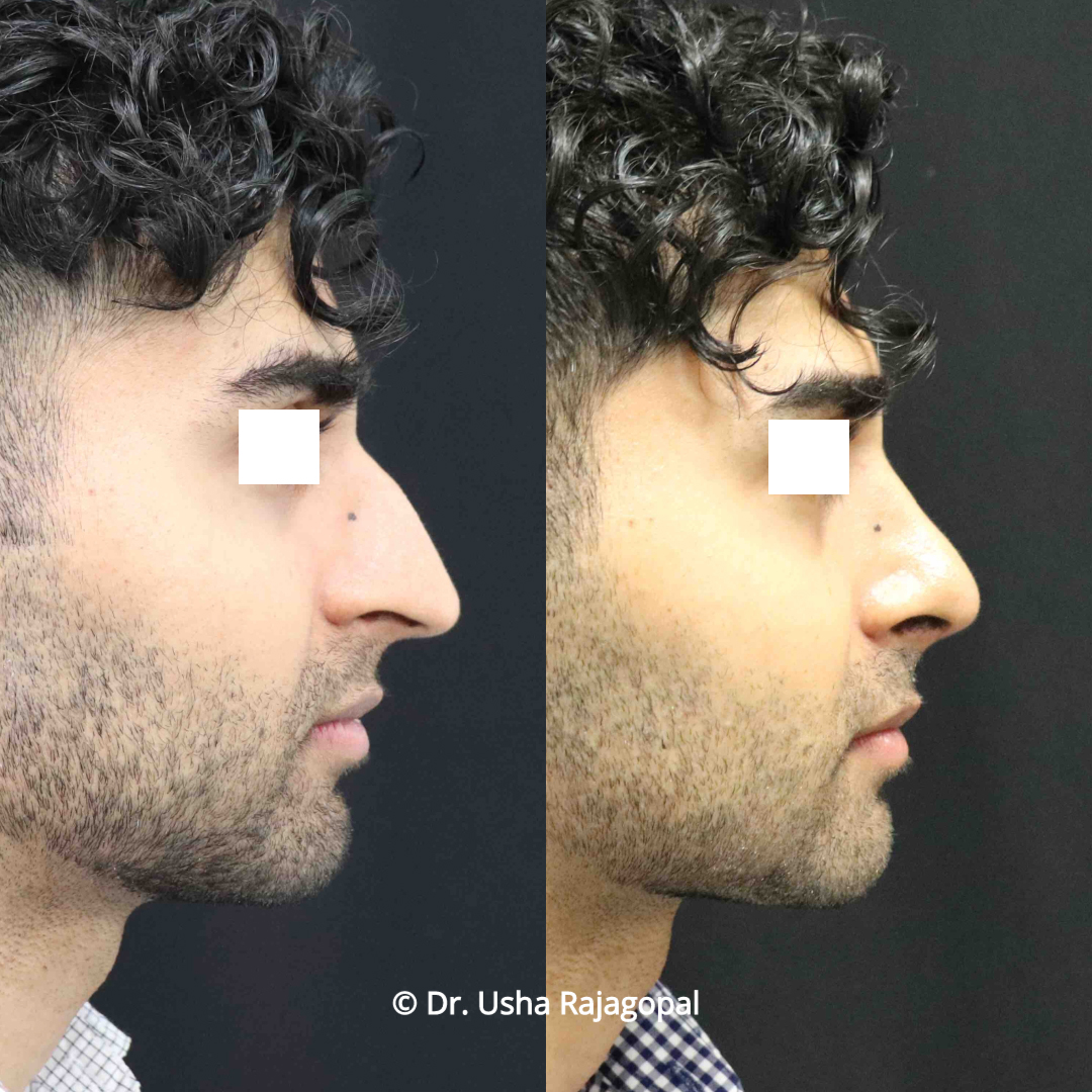rhinoplasty_before and after_21 copy.jpg