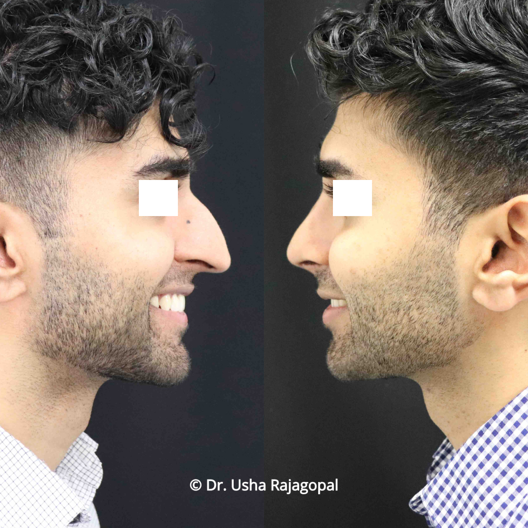 rhinoplasty_before and after_20 copy.jpg
