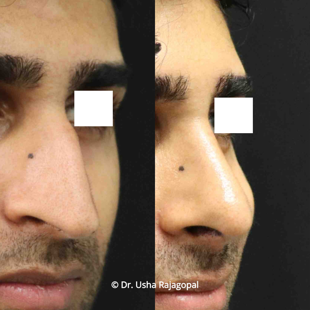 rhinoplasty_before and after_23 copy.jpg