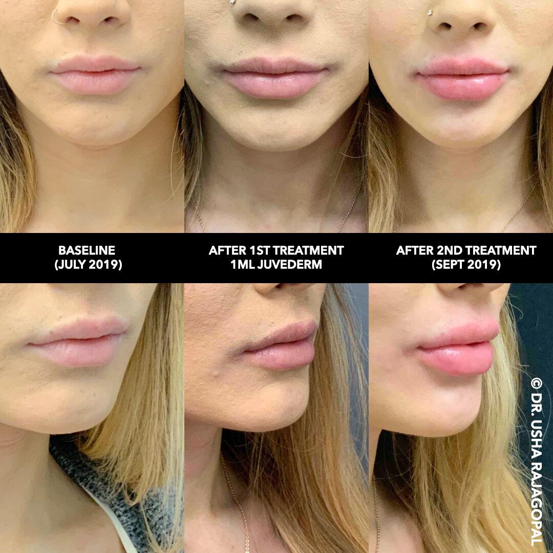 lip_augmentation_ang_ba_5 copy.jpg