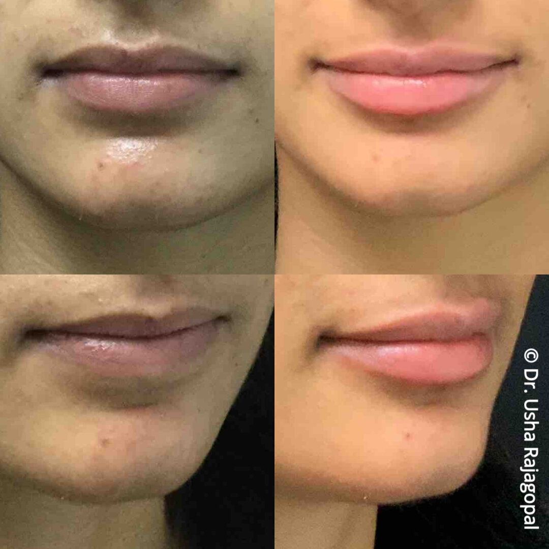 lip_augmentation_ang_ba_6.jpg