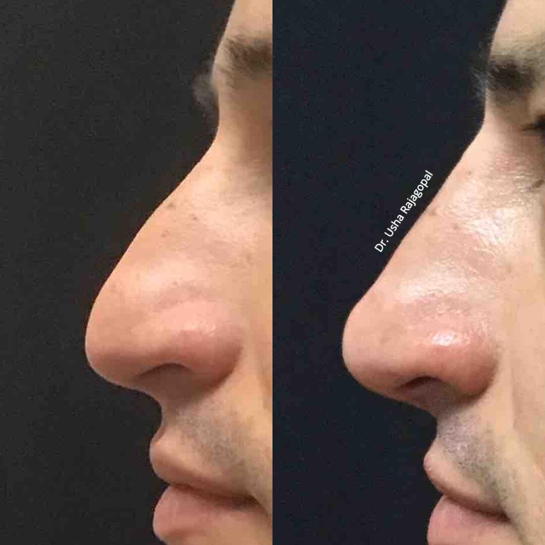 Non Surgical Rhinoplasty Nose Job Usha Rajagopal Md