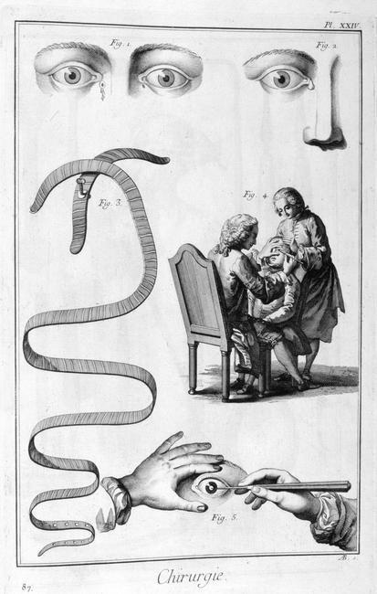 Eye surgery, 1751-1777. A print from the Encyclop?die, ou Dictionnaire Raisonn? des Sciences, des Arts et des M?tiers by Diderot & d'Alembert, 1751-1777. From a private collection.    Photo Credit:   HIP / Art Resource, NY    Image Reference:   AR944023