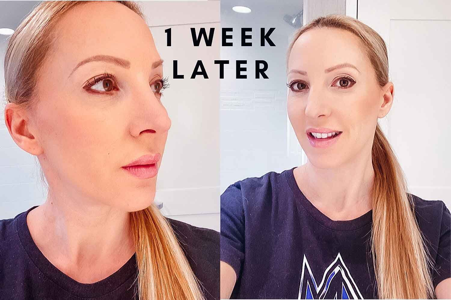 botox alternative results anti aging microneedling face treatment fitness blogger Eve Dawes