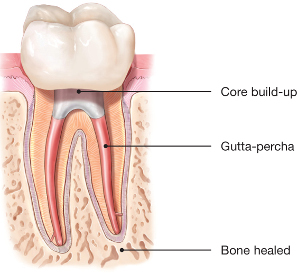 Healed-Tooth-Following-Root-Canal.jpg