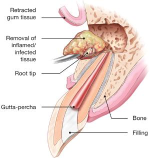 endodontic-surgery.jpg