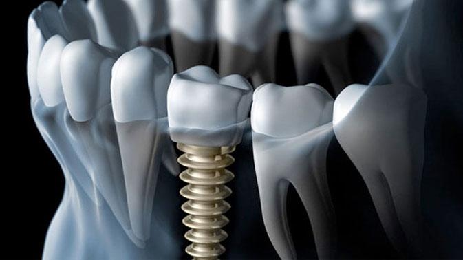 dental-implants-houston.jpg