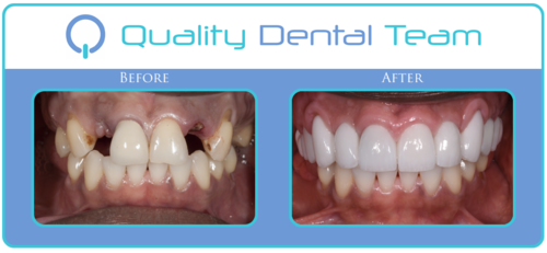 """This patient came to QDT looking for full restoration due to being unhappy with his smile and the condition of his teeth. This patient expressed """"I have insurance and I want to pull all my teeth and get all on 4"""". Here at QDT we strive to save your teeth rather than just pulling them out. We gave him all the best options for his dental treatment. After further consult and discussion, the patient decided it was best to proceed with the restorative option that allowed him to save his teeth and replace the missing teeth. The result concluded with 8 upper implants and 14 upper white crowns. Patient left happy and pleased with his new smile and teeth. Patient is scheduled for his future appointment to complete the treatment on the lower."""