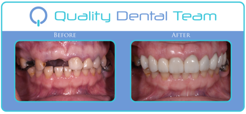 This patient came in seeking the All On 4 on the upper and lower. We recommended saving her teeth by replacing the missing teeth with dental implants, and restoring the remaining teeth with crowns and bridges. Patient left very happy with her new natural looking smile. She was even happier when she realized she was able to comfortably chew anything she wants.