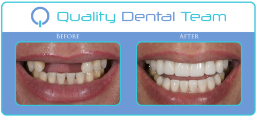 In this case, the patient is missing her front teeth and her teeth on the upper and lower are very yellow. We replaced her missing teeth in the front with two implants, and replaced the upper and lower teeth with white veneers. You can see the amazing transformation that was achieved with dental implants and crowns.