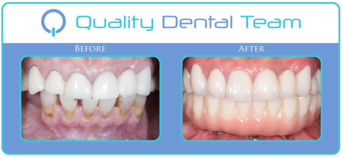 This patient came to QDT because she was not pleased with her smile. She was missing her back teeth and wanted the best restorative option. Her treatment plan according to her diagnosis included; replacing all of the upper teeth with full contour zirconia crowns, extract the bottom teeth, and replacing the missing teeth with the All on 4 procedure; including a fixed porcelain prosthesis. The patient had her full zirconia crowns on the upper done with a different provider. In the final outcome you can see that the upper gums are more leveled with her new crowns and the bottom teeth are made with porcelain.