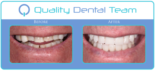 This patient had hopeless dentition on his upper back teeth. We proceeded with the All on 4 procedure in order to restore proper function of his upper arch. In this case of the All on 4, we placed 7 implants with lower crowns and veneers. As you can see, there is a dramatic change from before and after images that the procedure provided. We reestablished the proper function and smile of this patient.