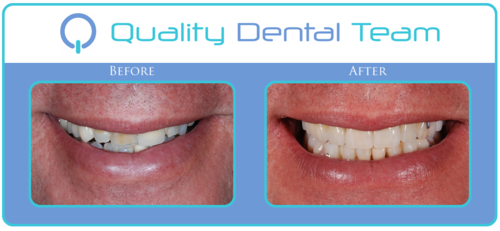 In this case we did six anterior crowns with an upper and lower removable partial denture. Patient liked the new color in his teeth and the increase in length of his upper front teeth.