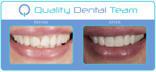 This patient desired for a smile make over. In order to provide this patient with a new smile; we replaced the old fillings and crowns with 8 porcelain veneers. The patient was very pleased because we reestablished the gum architecture and the length, and enhance the color of her teeth.