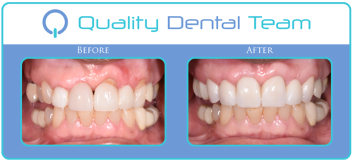 This patient came to QDT seeking the best restorative options for her missing teeth, and also the condition of her preexisting crowns. The patient wasn't pleased with her current crowns. In order to fix this case the patient went through periodontal surgery. We performed a soft tissue graft and crown lengthening to level the gums correctly. We then proceeded with new porcelain crowns on the upper to give her a natural restoration to compliment her smile. The patient is ecstatic with her new teeth and blushes over the amount of compliments she receives.