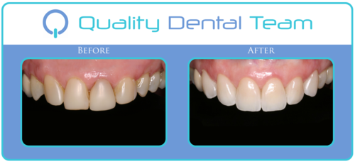 This patient came to our office with very old fillings on her teeth. She wanted to enhance her smile by replacing the old filling with porcelain veneers. This procedure took as little as two appointments to reinvent her smile. In the first appointment we began with removing all of the old fillings and taking new impressions of the teeth. We then proceeded with creating temporary veneers to mimic the final veneers. A few weeks after this first appointment we delivered her final and permanent veneers. This particular case was challenging because the patient was missing two of her front teeth. The patient was very happy with her results and her new natural looking smile.