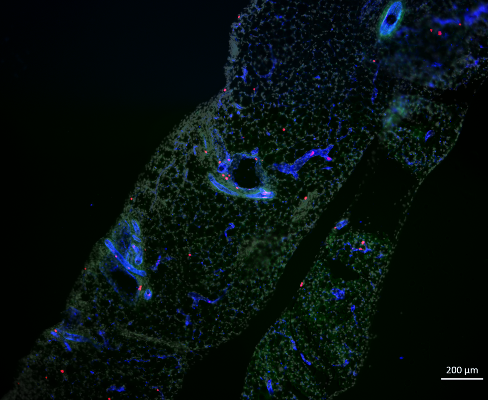 gonadal adipose tissue: ILC2 (Red), vessels (blue)