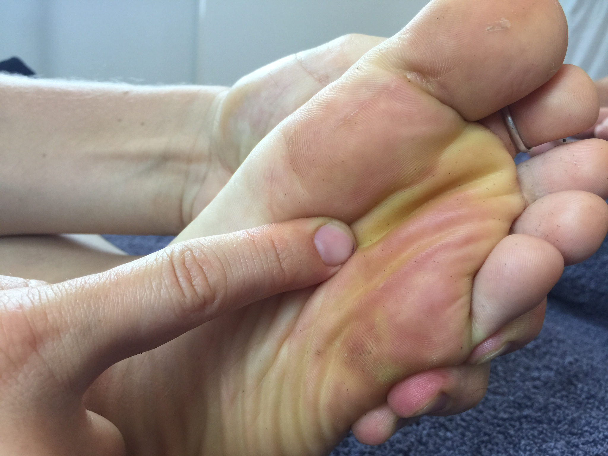 finger pointing at foot