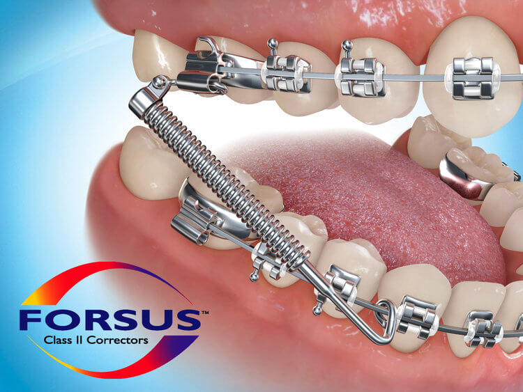 Forsus orthodontic appliance showing spring and tooth movement.