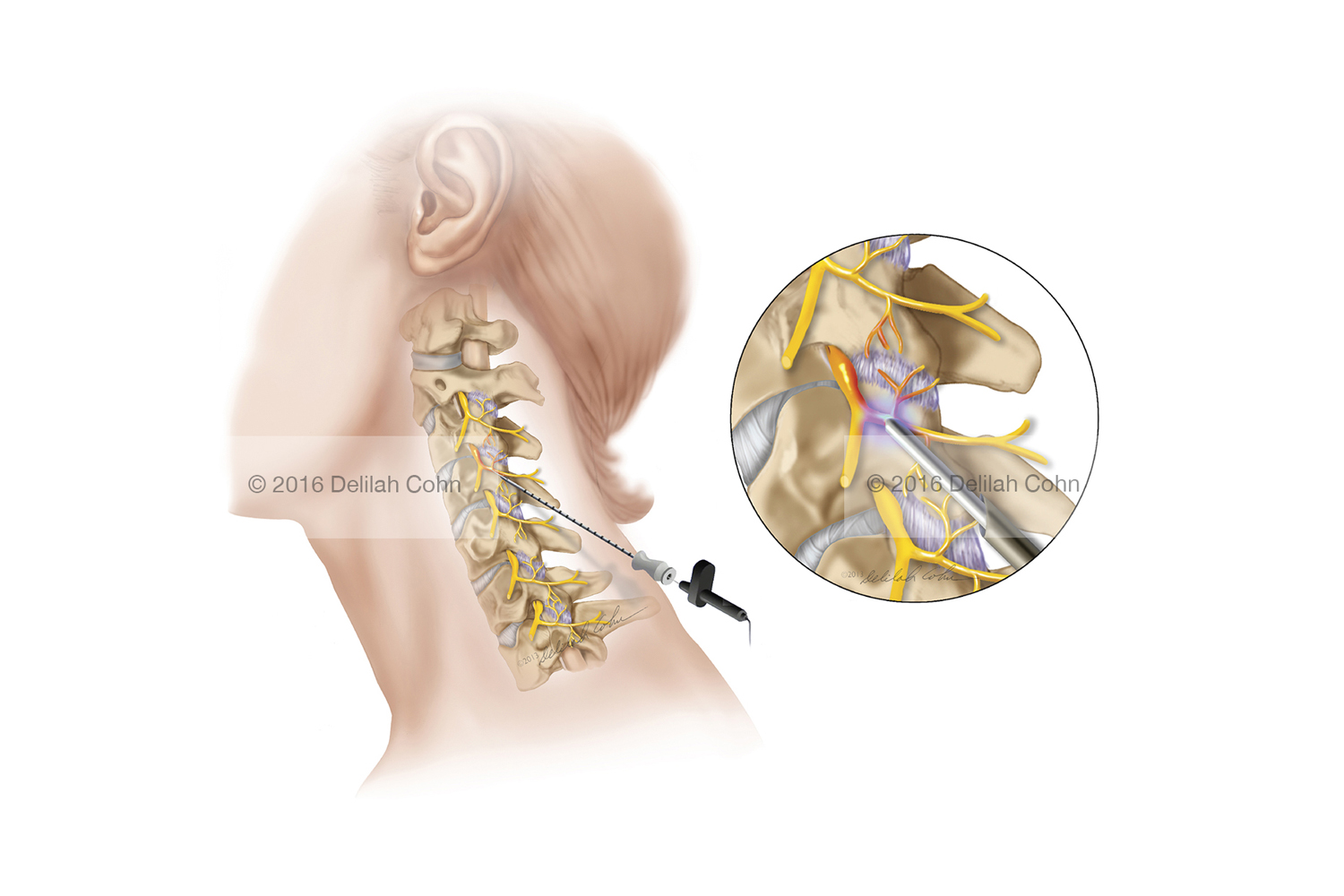 Cervical Facet Syndrome — Radio-Frequency Ablation (RFA)