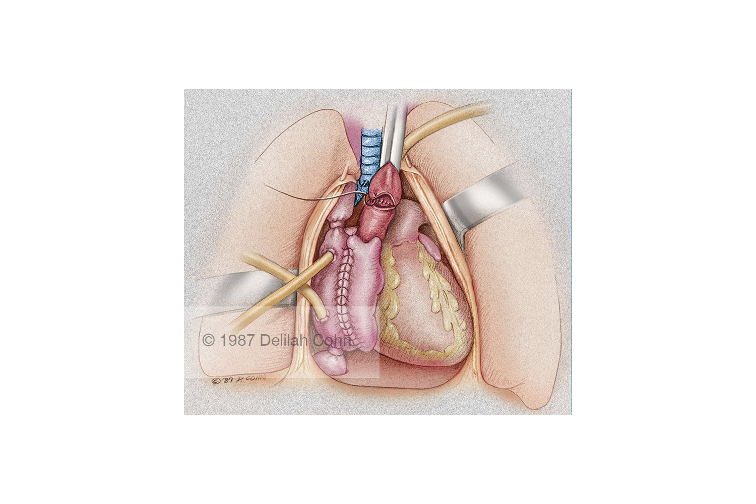 Heart Lung Transplant