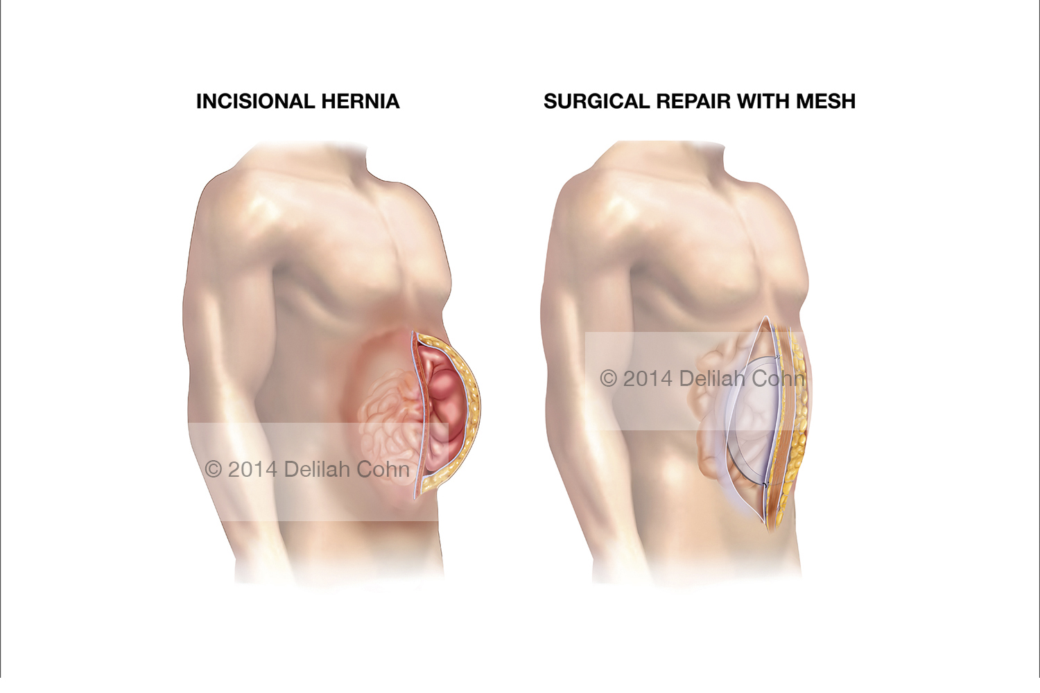 Incisional abdominal Hernia and Mesh Repair