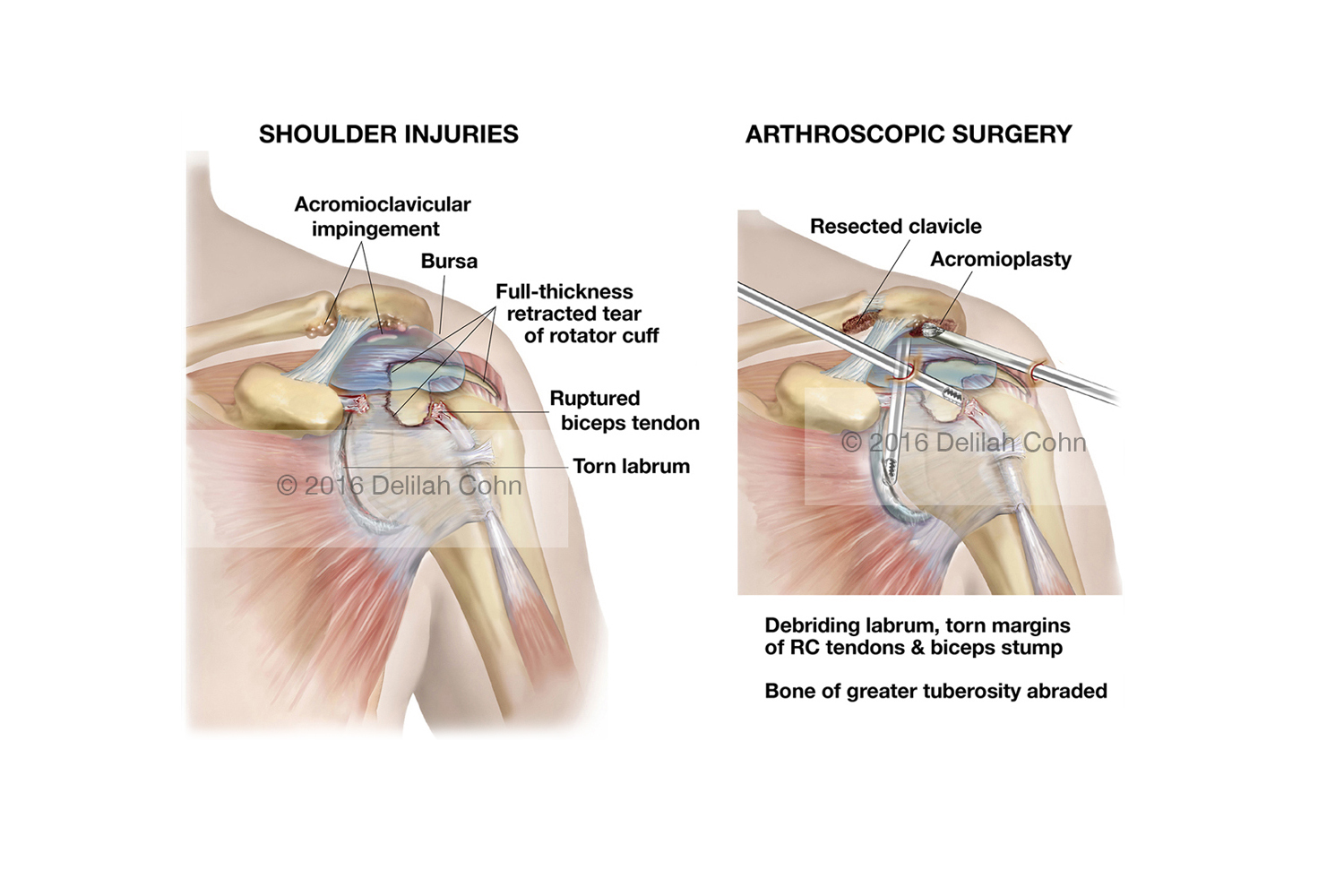 Shoulder injuries and Arthroscopic Surgical Repairs