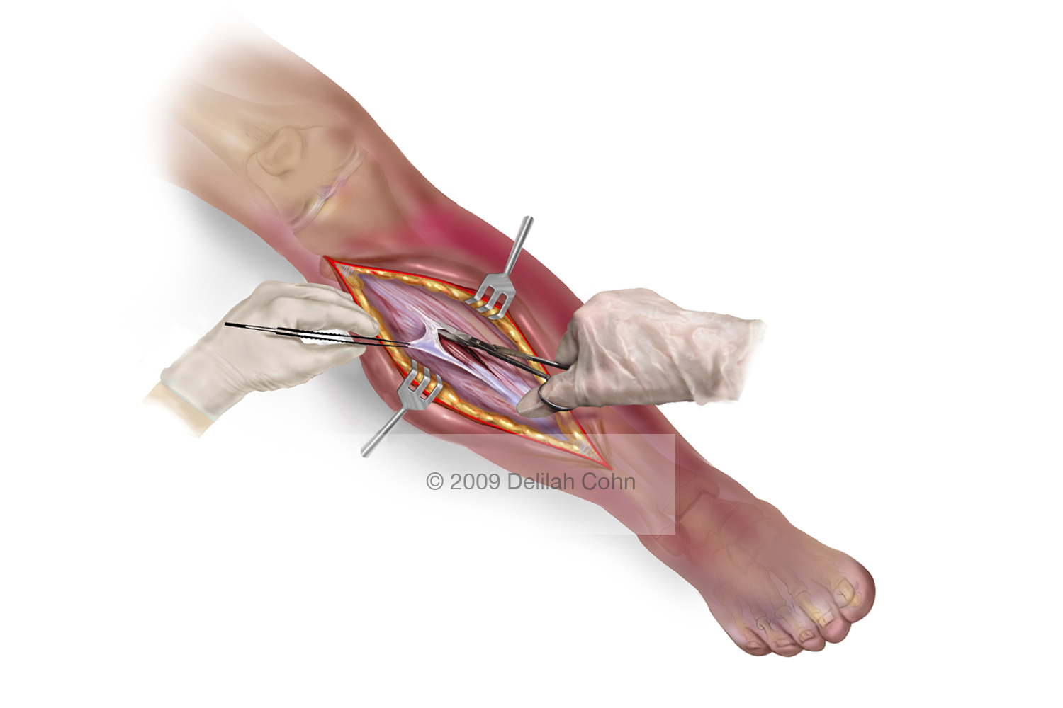 Fasciotomy of the Anterior Compartment of the leg