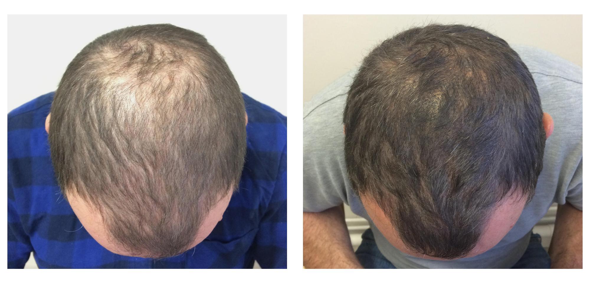 Traitement d'une perte de densité masculine par tricopigmentation