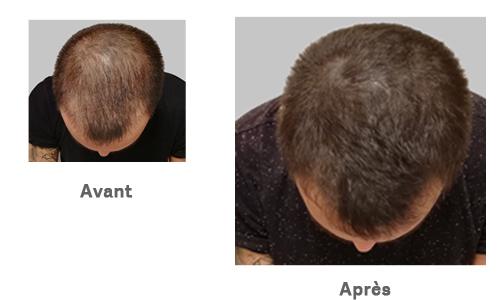 Tricopigmentation-AvantAprès-Alain-Institut-Capillaire.jpg