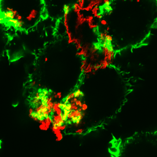 Lipoproteins (red) being digested by macrophages (green)