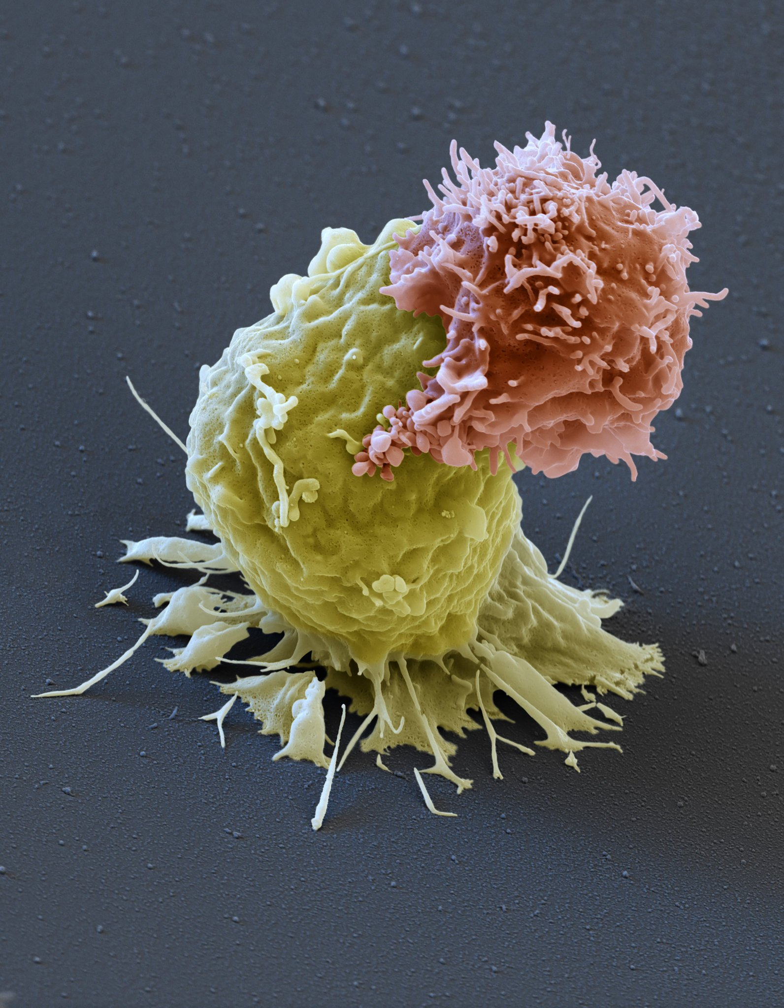 Photo: Cancer fighting T-cell attacking Leukemia cell from New York Times; Eye of Science, via Science Source