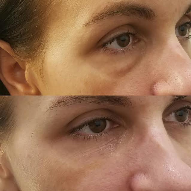 Under eye correction with Juvederm.