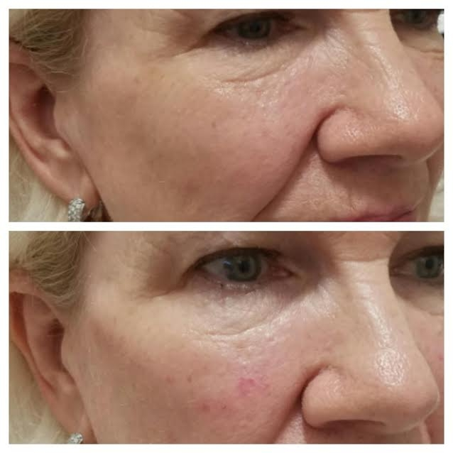 Instant cheek lift immediately post injection with Restylane Lyft