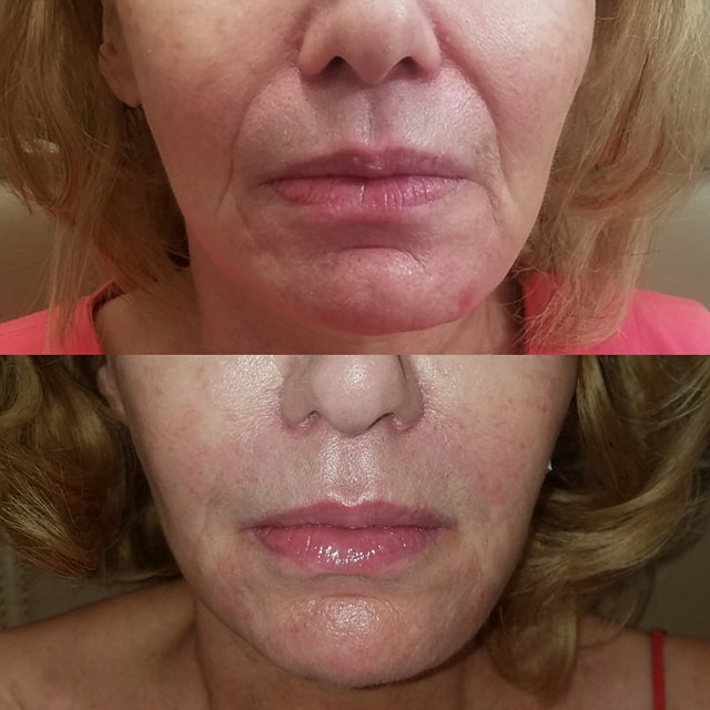Patient treated with one syringe of Juvederm Ultra Plus and 3 Syringes of Vollure over 2 visits.  Photo is immediately after 2nd injection sitting.