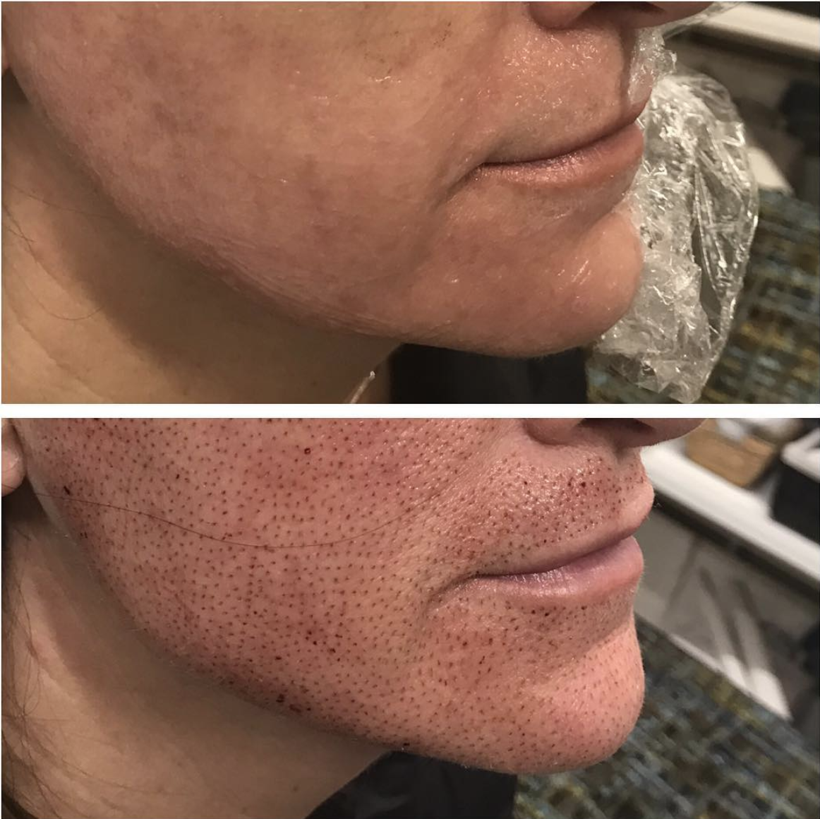 Full Face Lift, immediately post treatment. Jowels are tightened/lifted and corners of mouth are lifted.