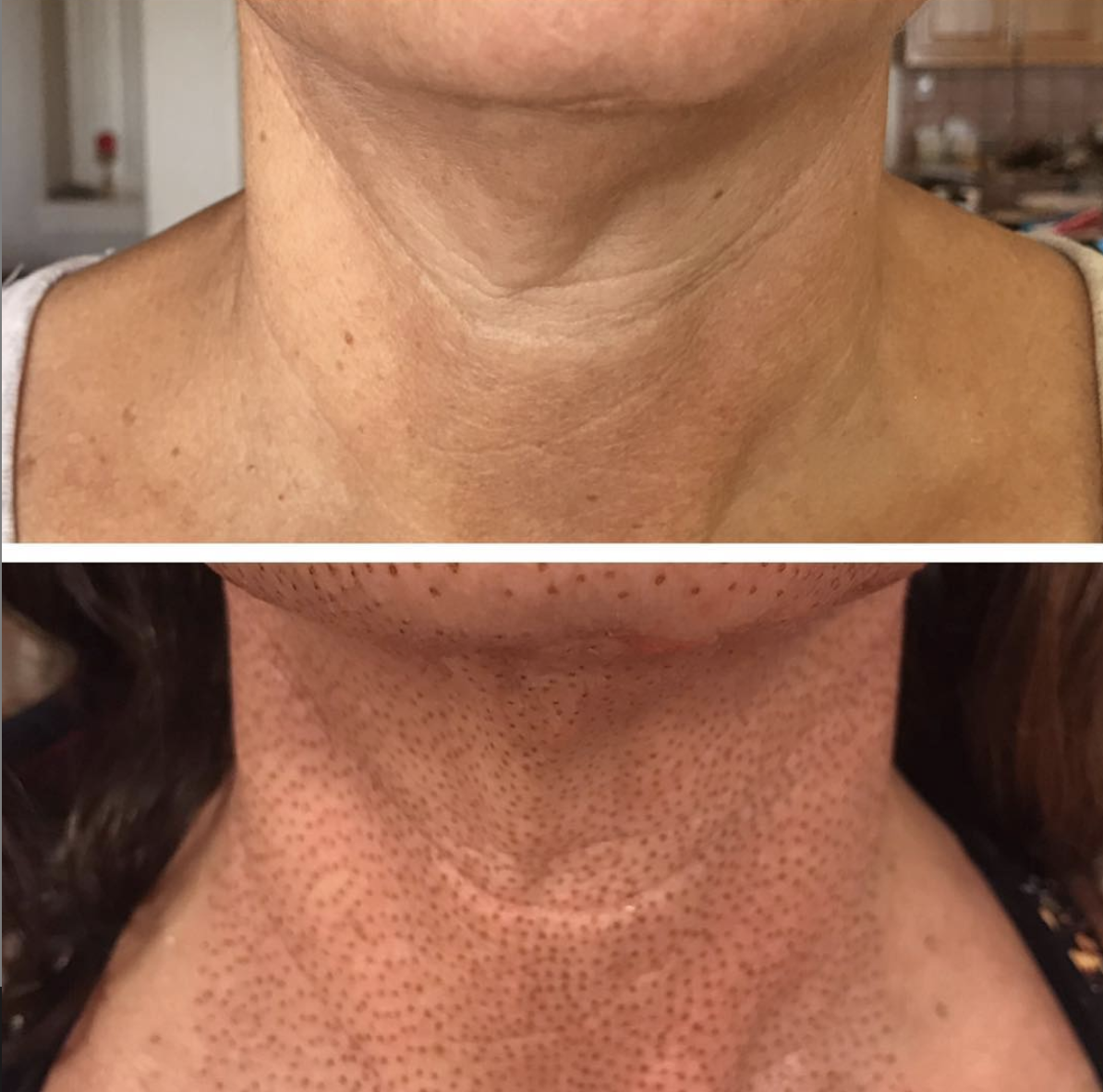 Neck lift, immediately post treatment. Immediate tightening of the skin.