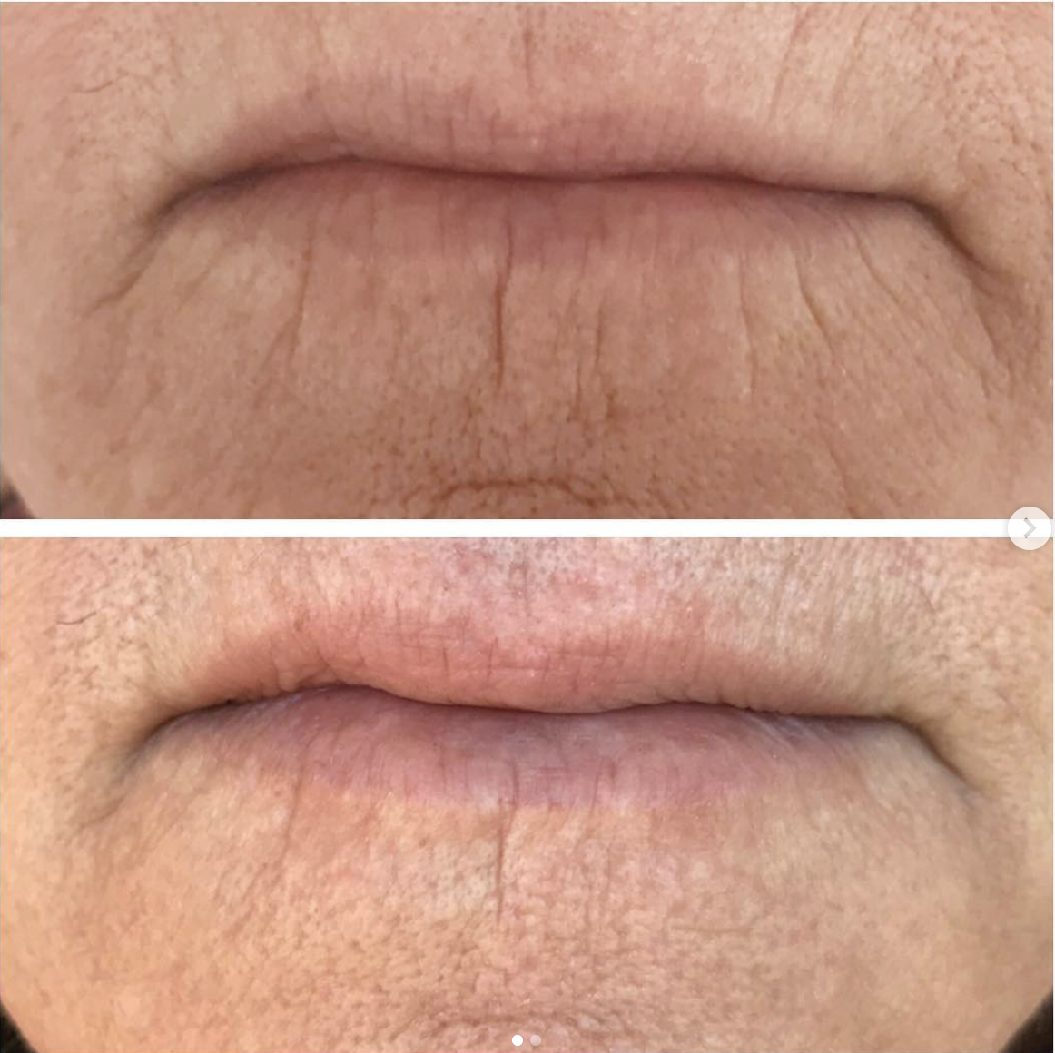 One treatment, 2 months healed. Reduction in fine lines, lift in the corners of mouth and slight lip enhancement (lip flip).