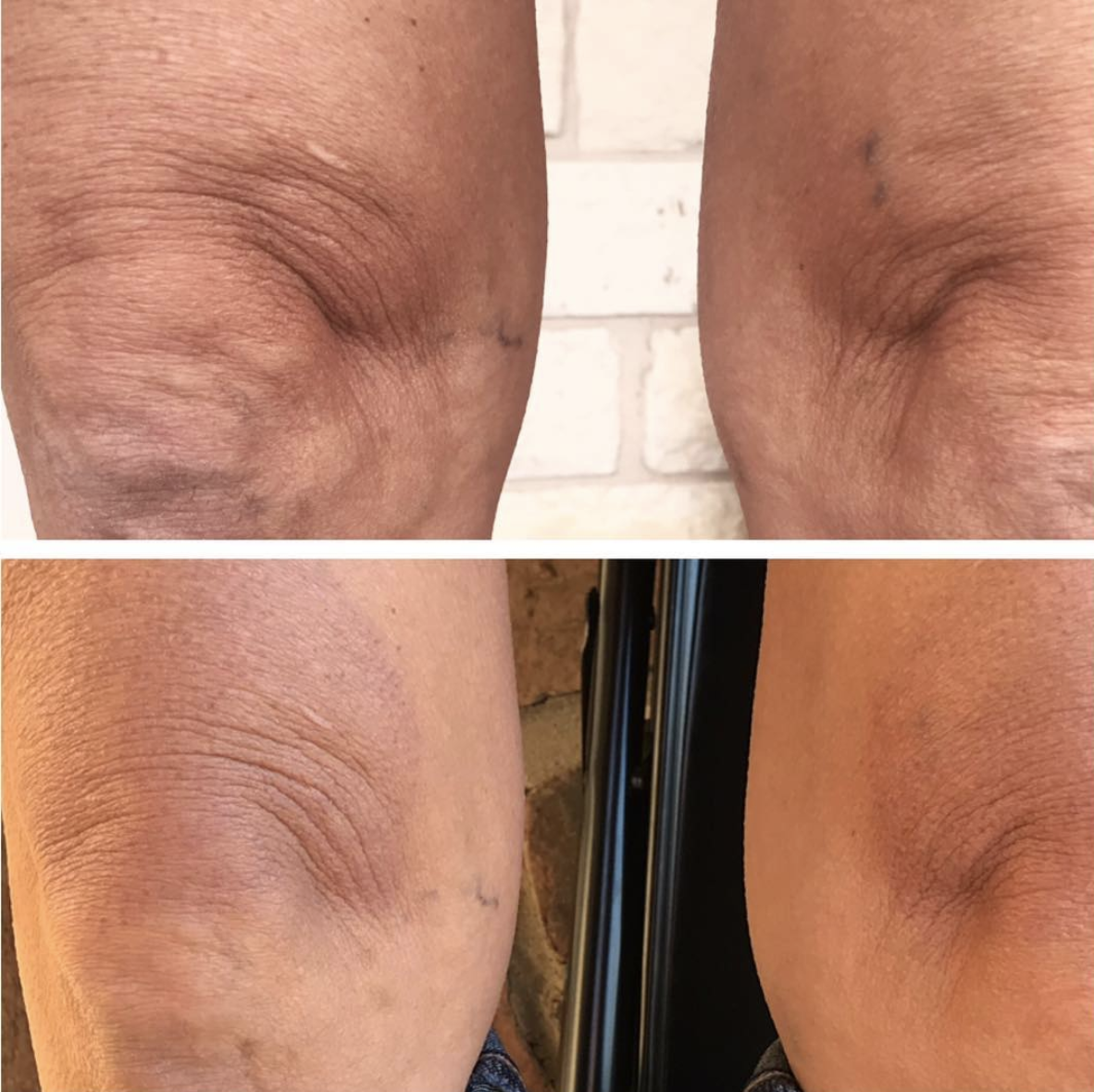 Knee lift, one treatment, 2 months healed. Overall tightening of skin. Reduction of vein visibility. Client experienced of the treated area - this will heal itself over time or can be treated with a serum to correct more quickly.