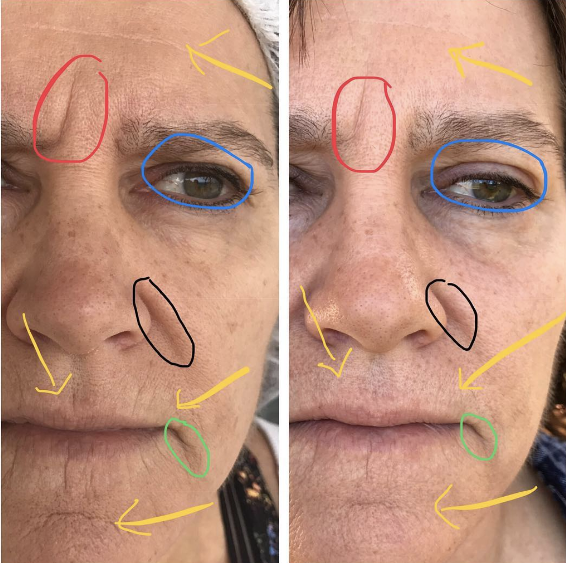 Full face lift, one treatment, 2 months healed.  Overall subtle lift and brightening. Deeper folds and wrinkles are shorter and more shallow. Reduction in fine lines and less sagging over the eye.
