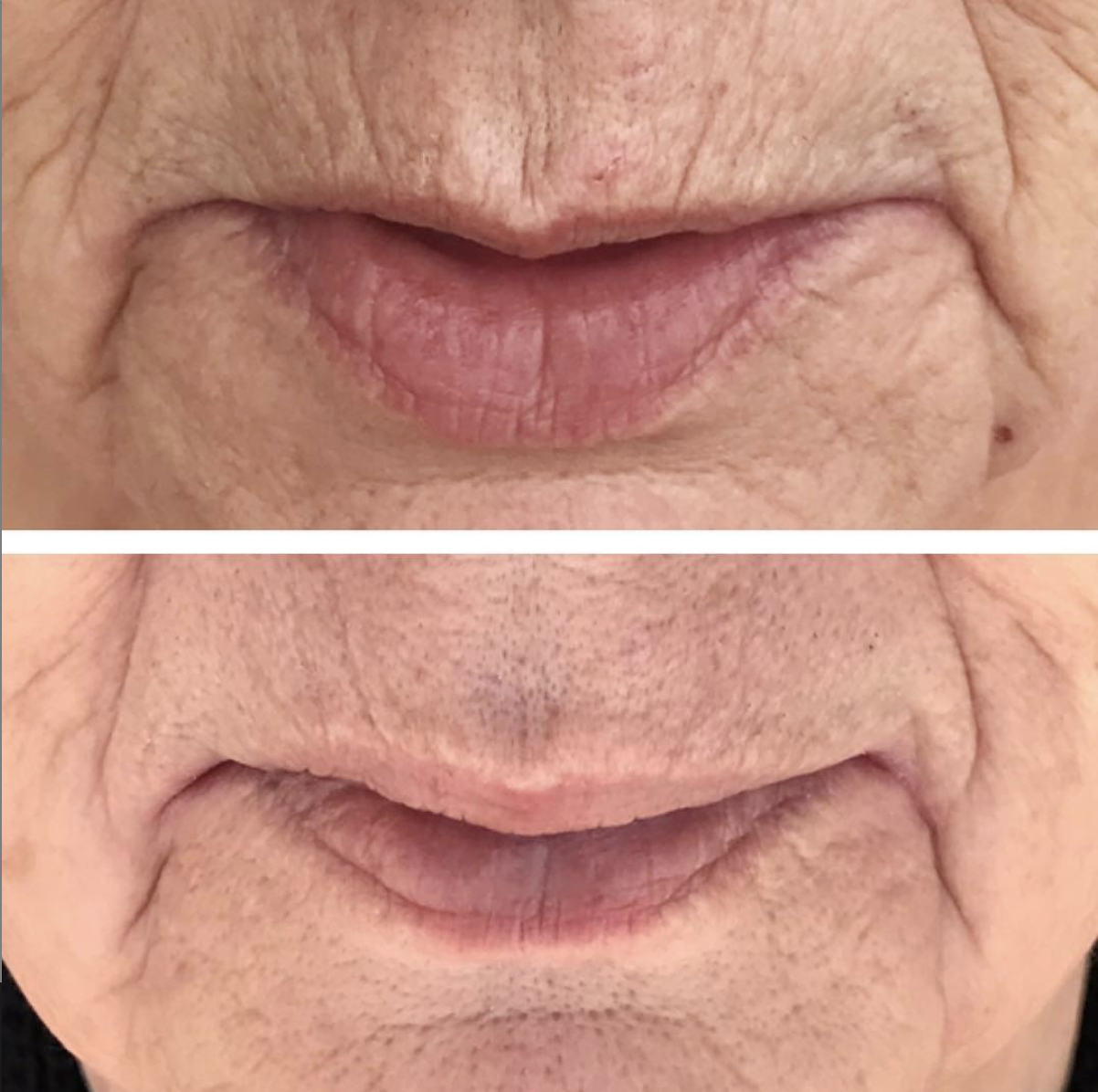 One treatment, 2.5 weeks healed. Reduction of fine lines around the mouth. Deeper wrinkles are shorter and more shallow. Client will continue to see improvements until about 2-3 months post-treatment.