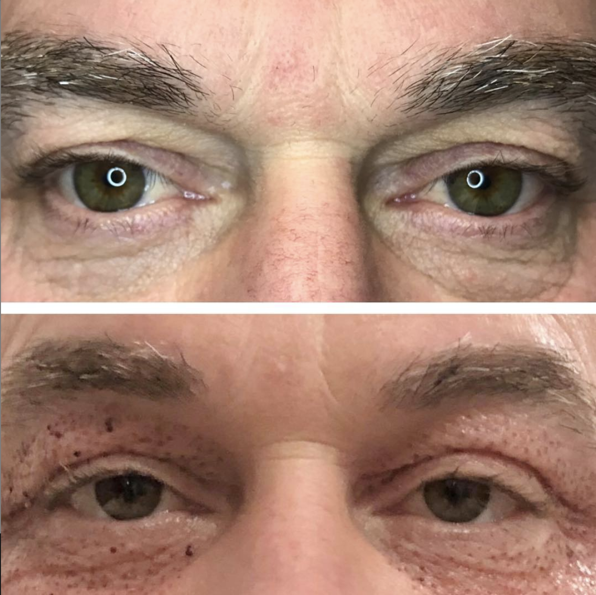 One treatment, 4 days post-treatment. Eyelid lift and fine-lines treatment around the eyes. Client will continue to see improvements until about 2-3 months post-treatment.