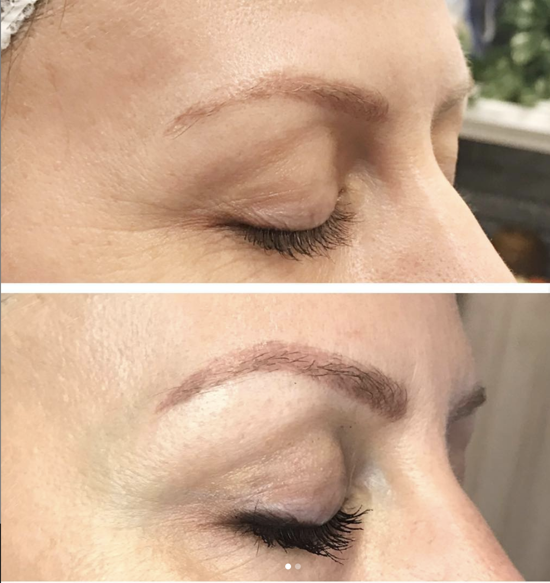 One treatment, 3 months healed. Treated the skin around her eyes and also above her brow for a brow lift and fine-line improvement.