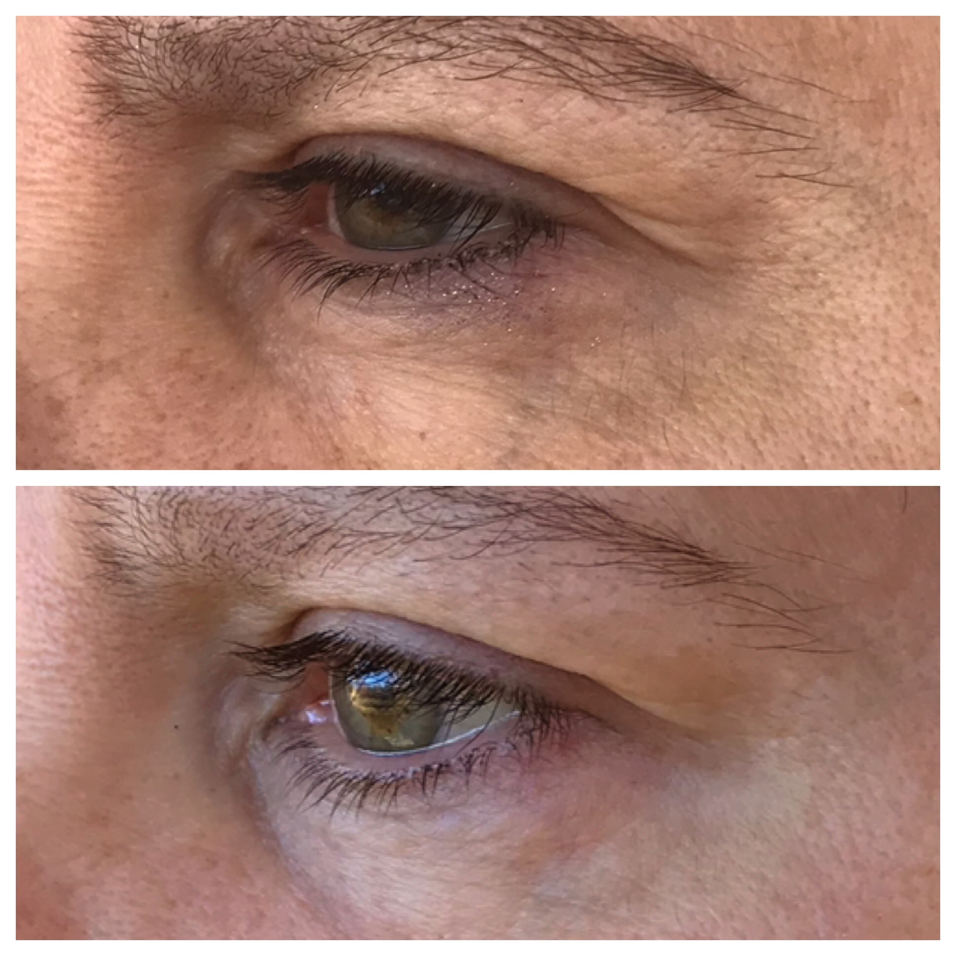 One treatment, 2 months healed. Eyelid is lifted and crows feet are reduced.