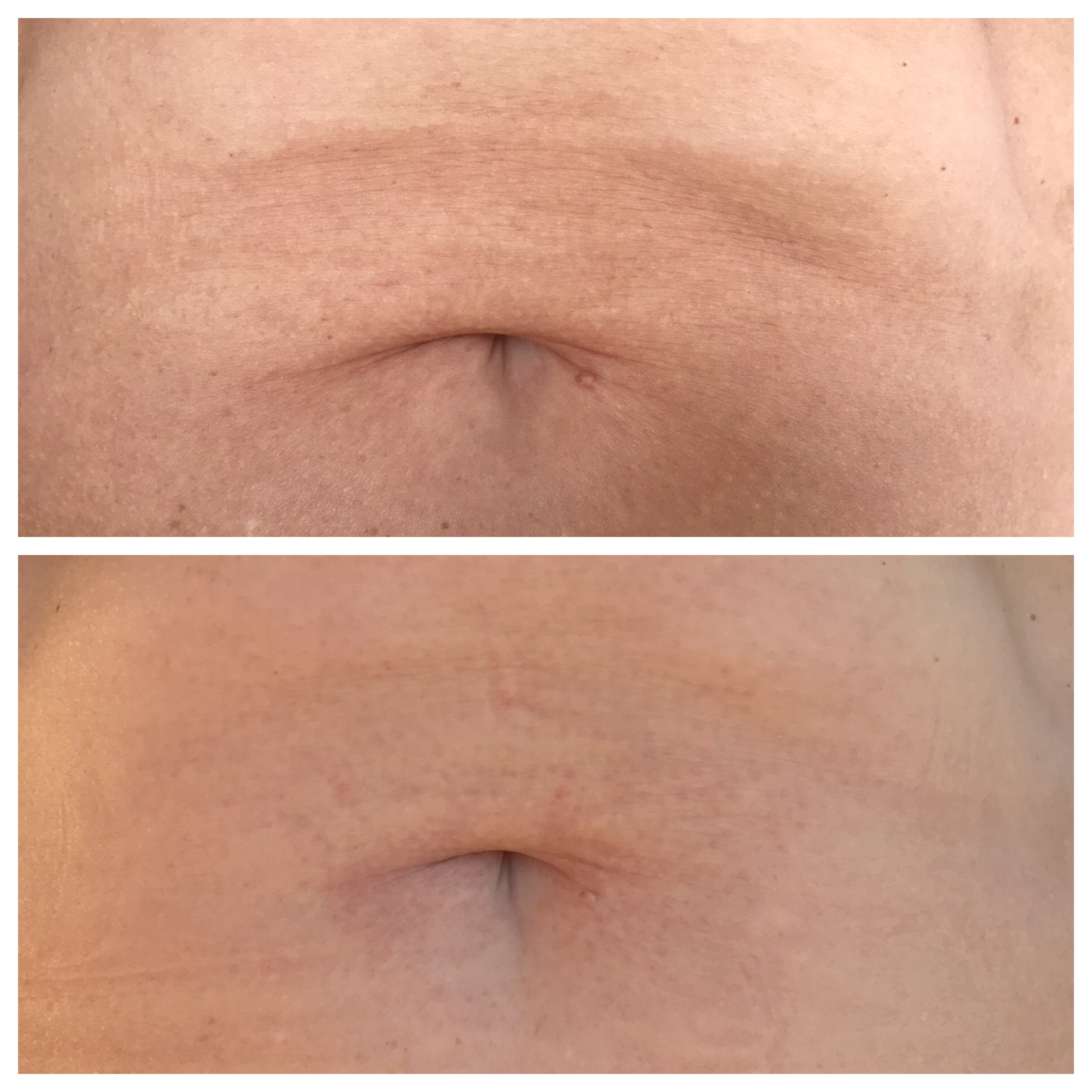 One treatment, 2 months healed. Fold over the belly button has shortened, wrinkles on the fold and fine lines above the belly button are reduced.